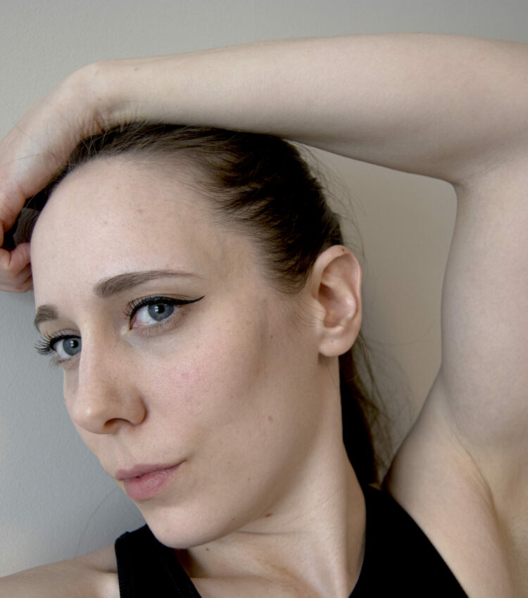 Bilde av meg, hvor jeg halvveis viser frem min arm